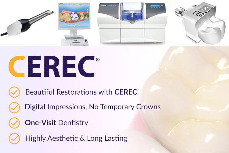 CEREC Same Day Dental Restoration